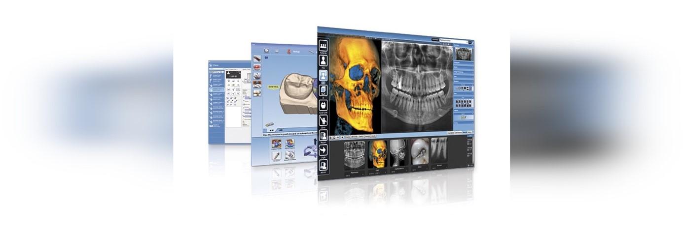 Planmeca Romexis pour Impression 3D